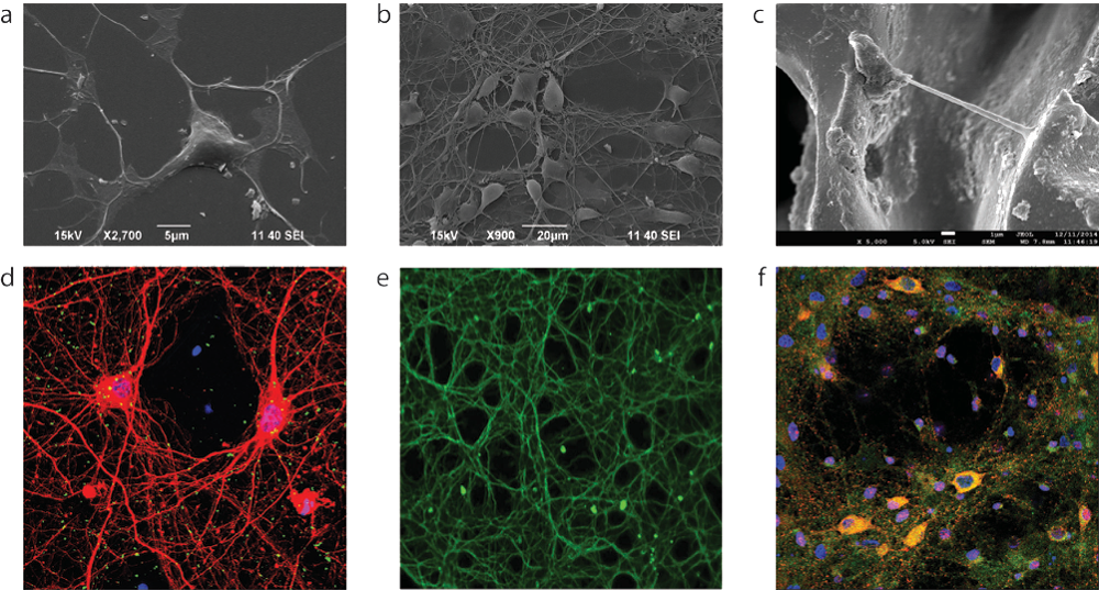 Scanning Electron Microscopy (a, b, c) and Fluorescence Confocal (d, e, f) images of primary neurons: (i) exposed to graphene nanosheets, (ii) grown onto CVD graphene substrates and (iii) 3D scaffolds.
